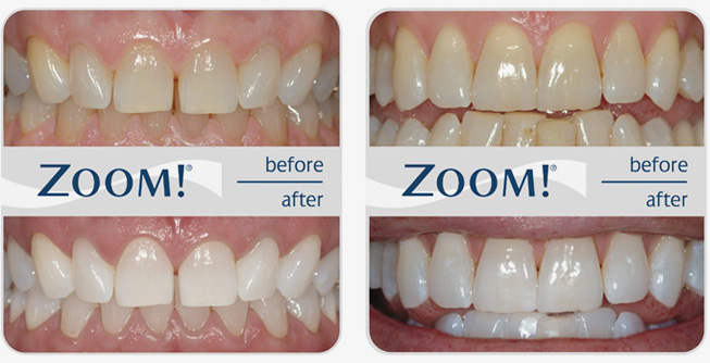 zoom teeth whitening