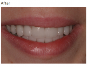 what does full mouth reconstruction mean